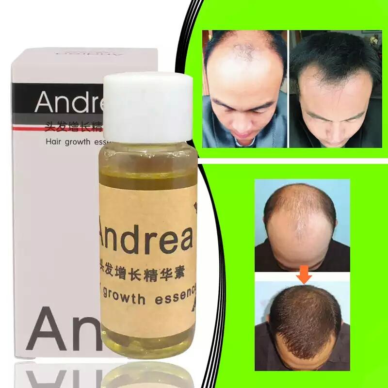 produits pour pousser vos cheveux